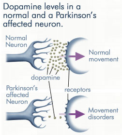 Cartoon of dopamine loss in Parkinson's disease