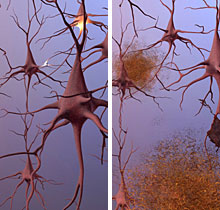 healthy vs Alzheimer's neurons