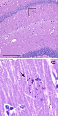 PGBs in mouse brain