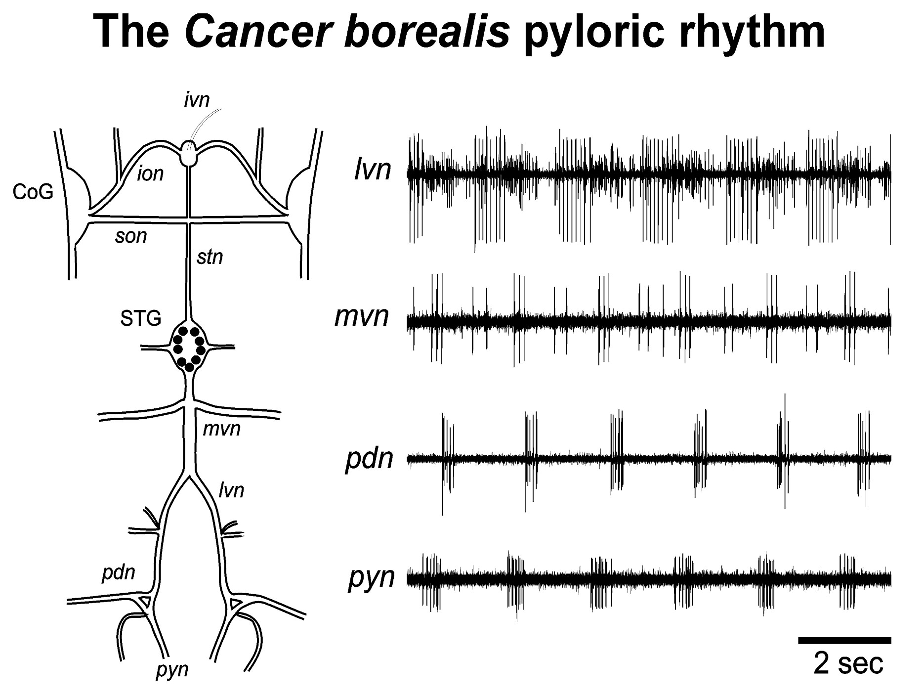 pyloricRhythmCancer