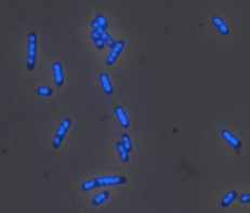 E.coli cells exiting the stringent response